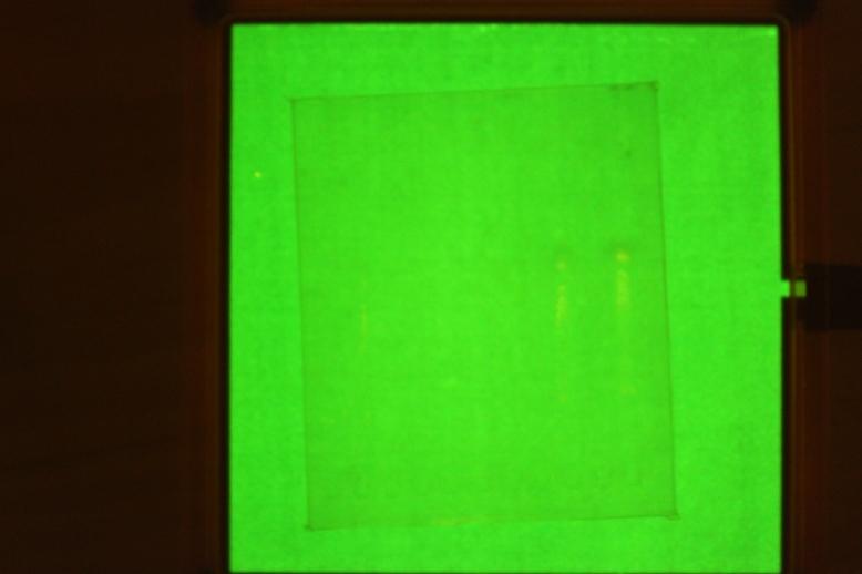 Gel imaging is hard.